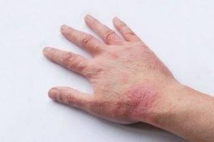 как заразиться дерматитом