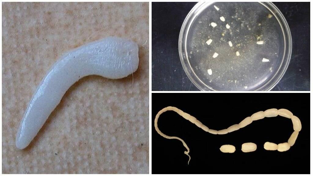 виды червей в организме человека