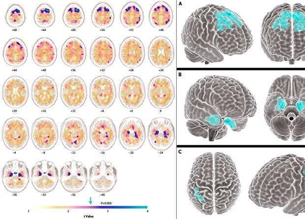 Энцефалопатия головного мозга: виды, признаки и проявления, лечение