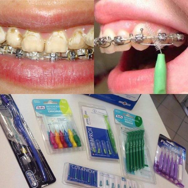 Специальные ершики для чистки зубов с брекетами