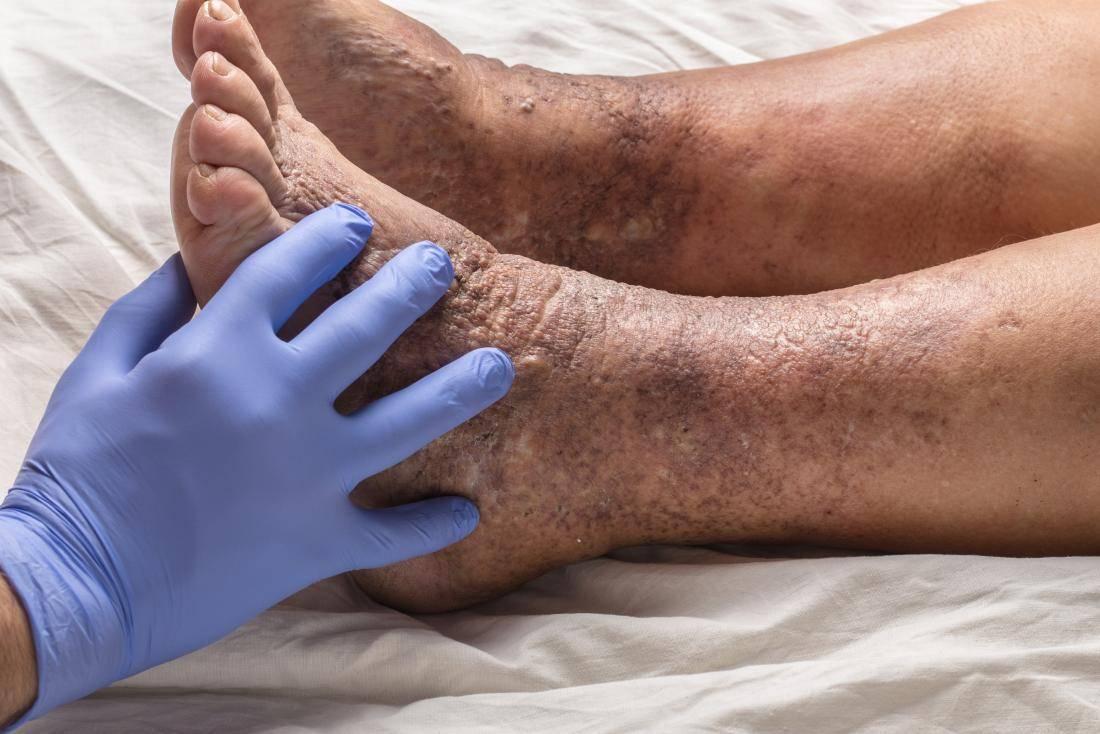 Псориаз ногтей: описание, лечение, опыт форума