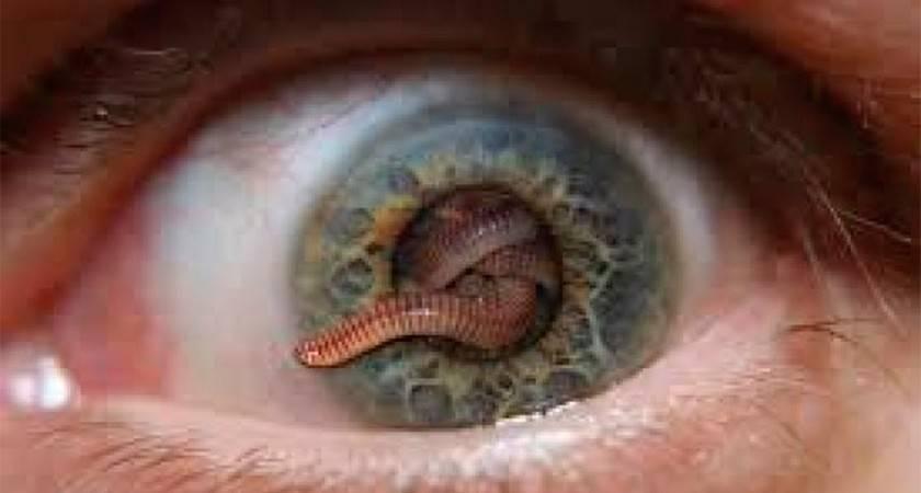 паразитарные заболевания глаз