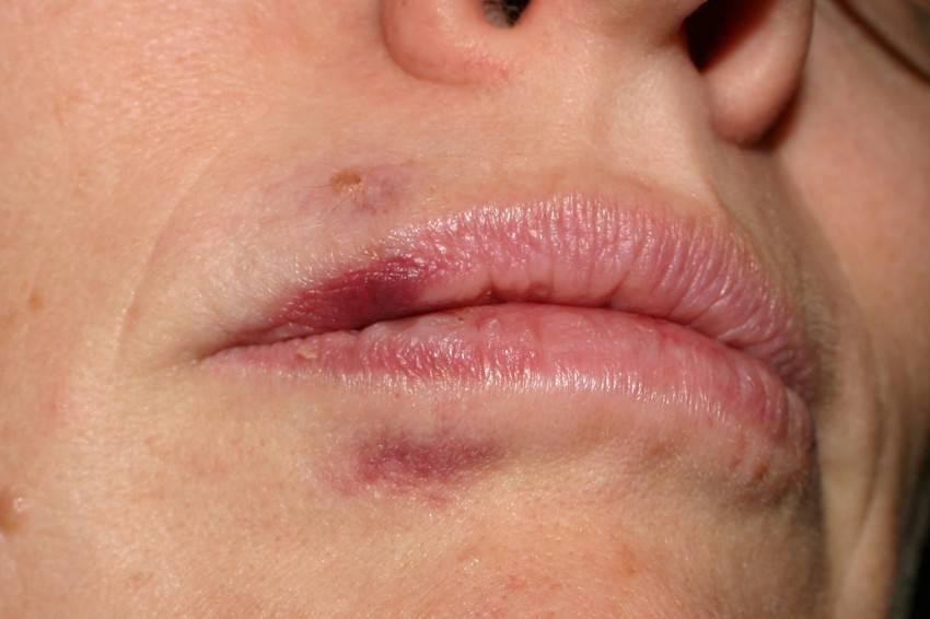 Внутренний герпес: симптомы, лечение внутренних органов, причины, последствия