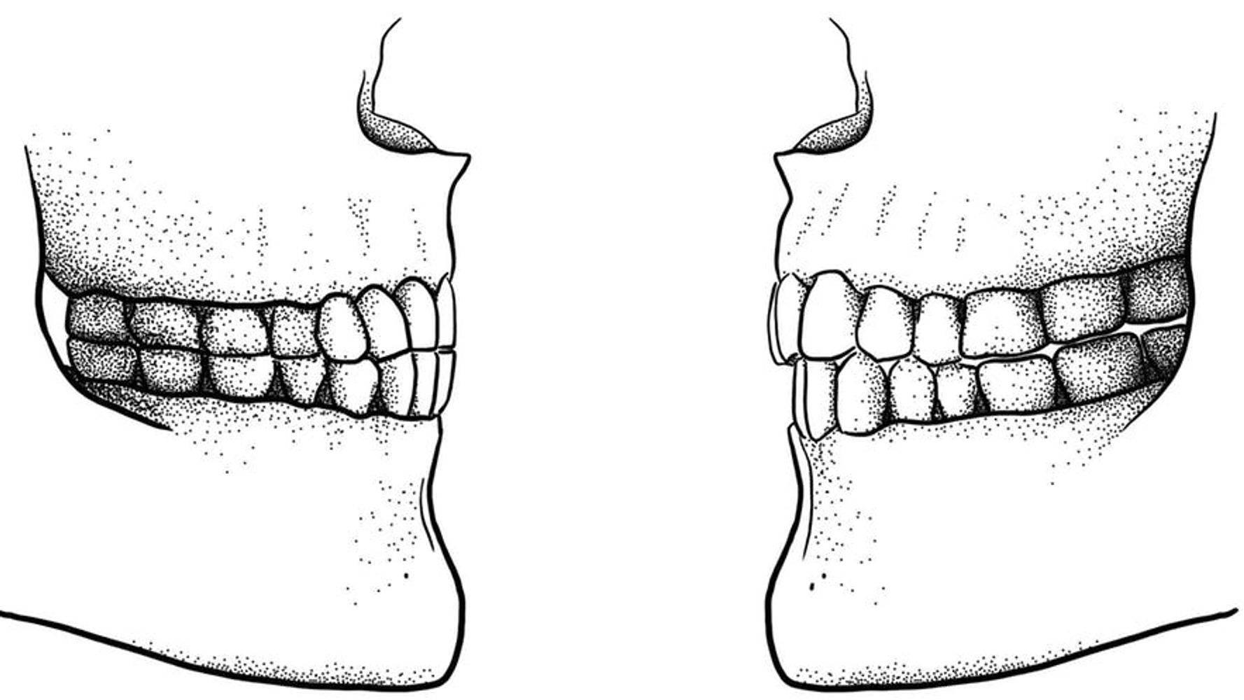 Прикус зубов: виды, признаки правильного и неправильного прикуса