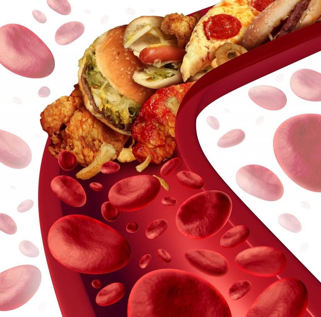 Анализ на повышение холестерина низкой и высокой плотности