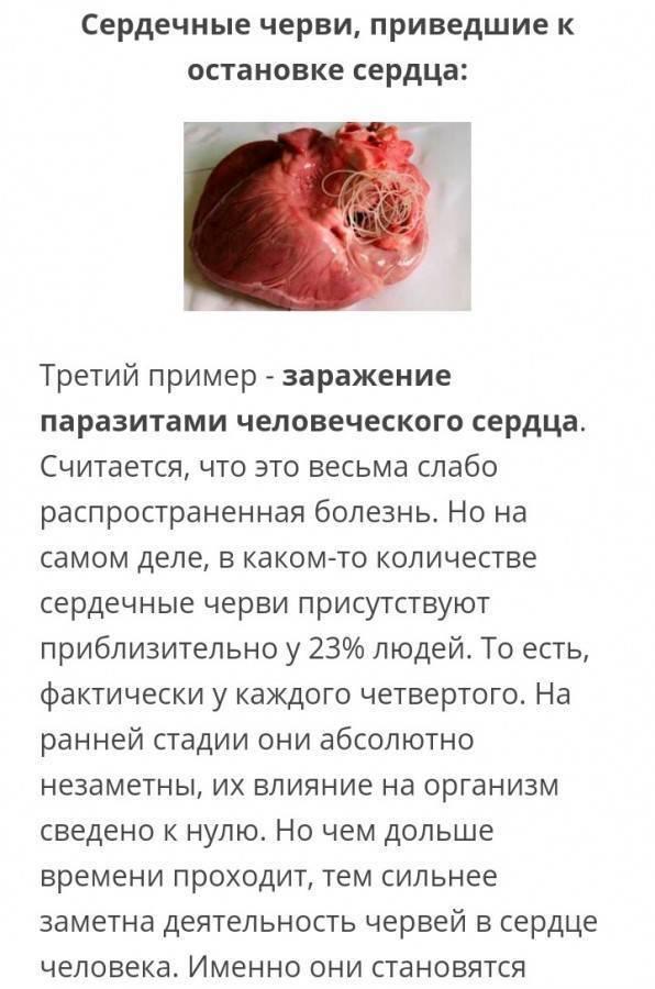 Черви в сердце человека симптомы. чем опасны черви, паразитирующие в сердце человека? общие симптомы глистной инвазии