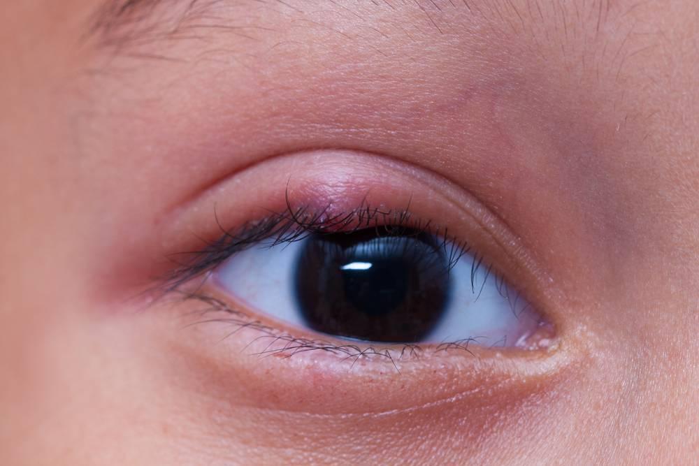 Доктор комаровский о лечении халязиона у детей