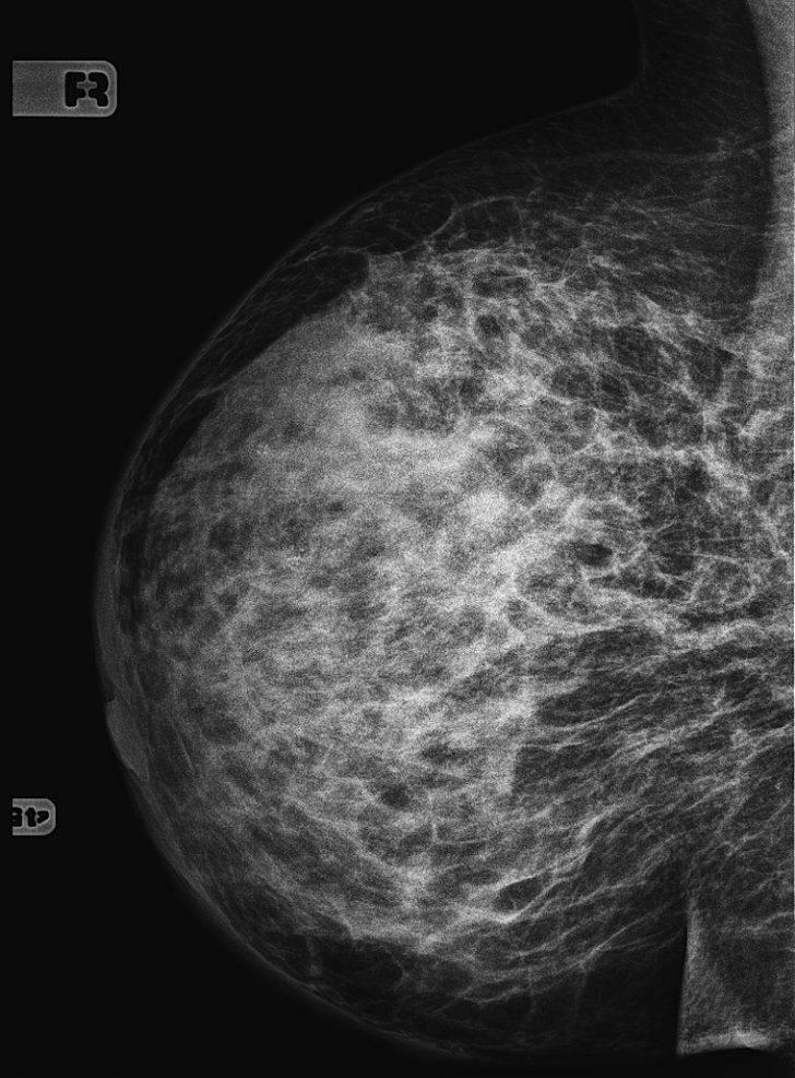 инфильтративная форма рака молочной железы