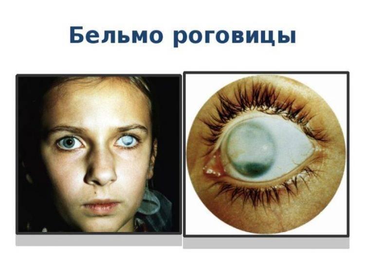 лечение помутнения роговицы глаза
