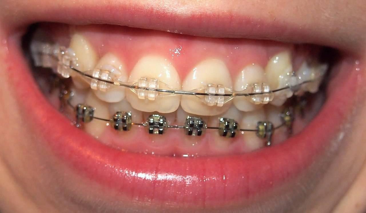 портят ли брекеты зубы