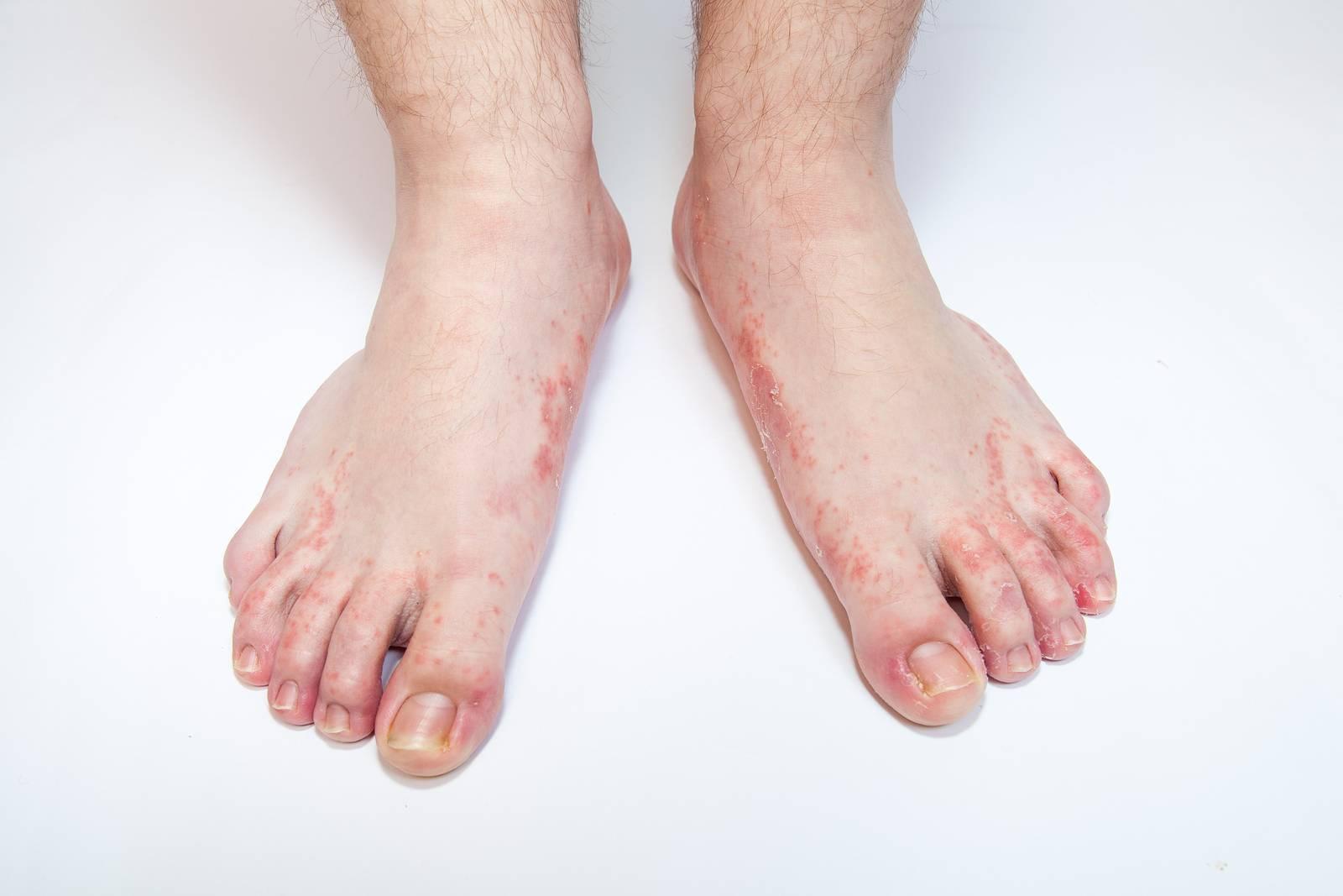 как лечить дерматит на ногах