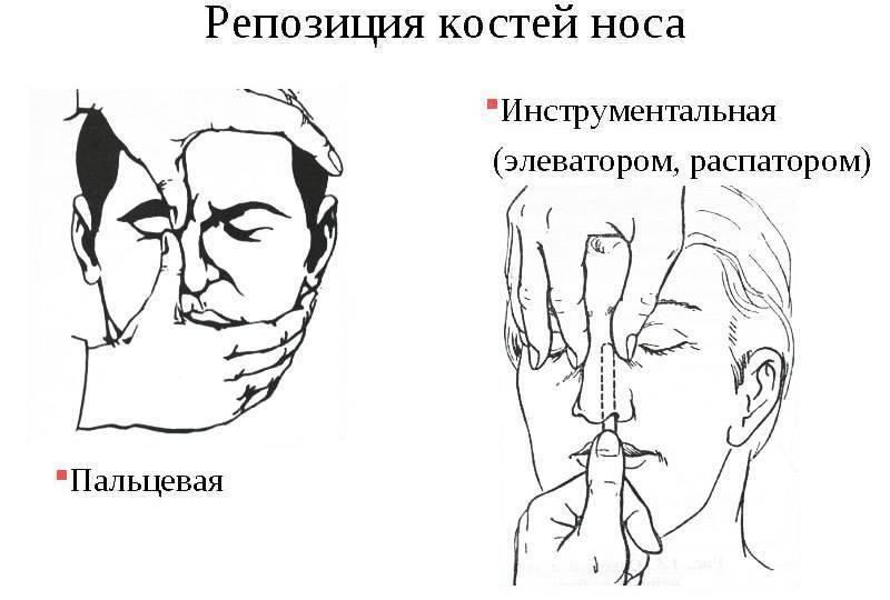 вправить нос