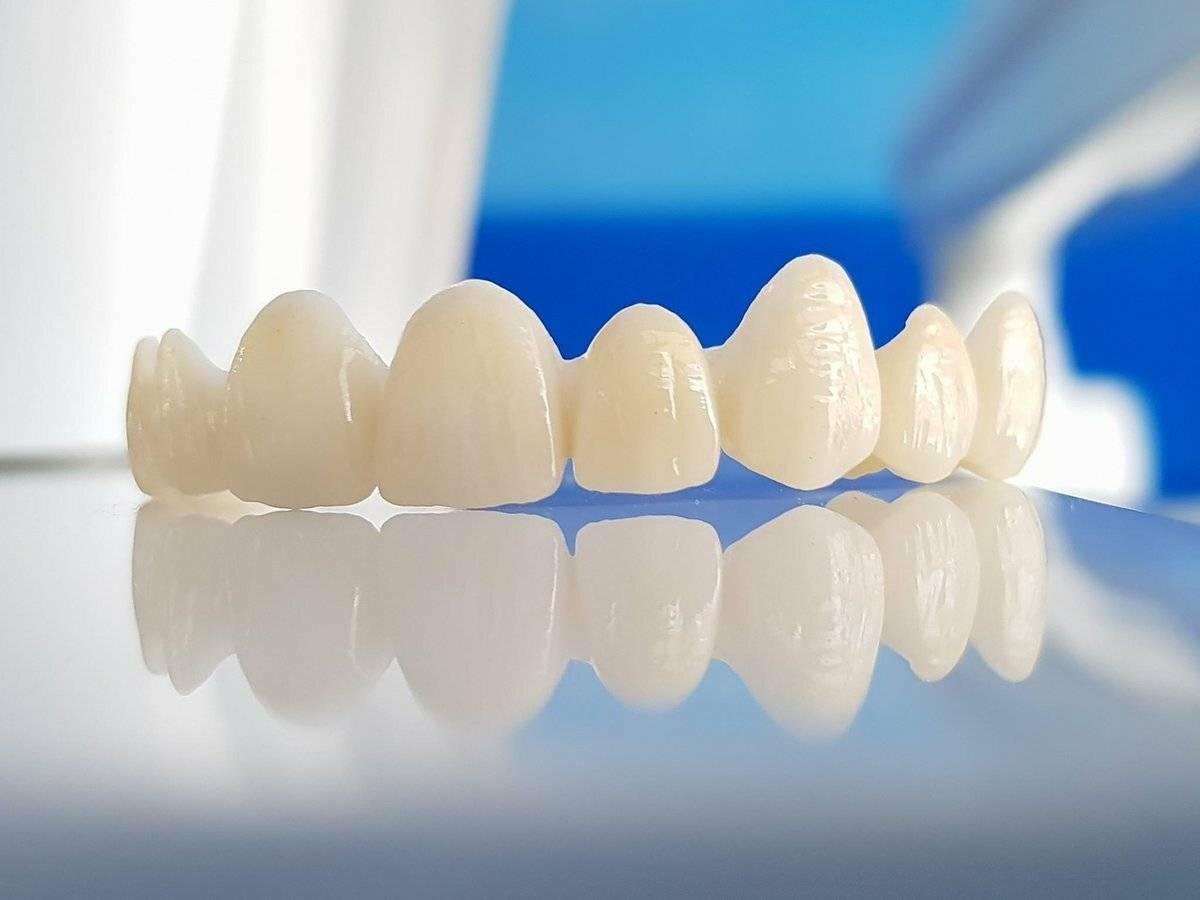 Керамические коронки на передние зубы: виды и цена