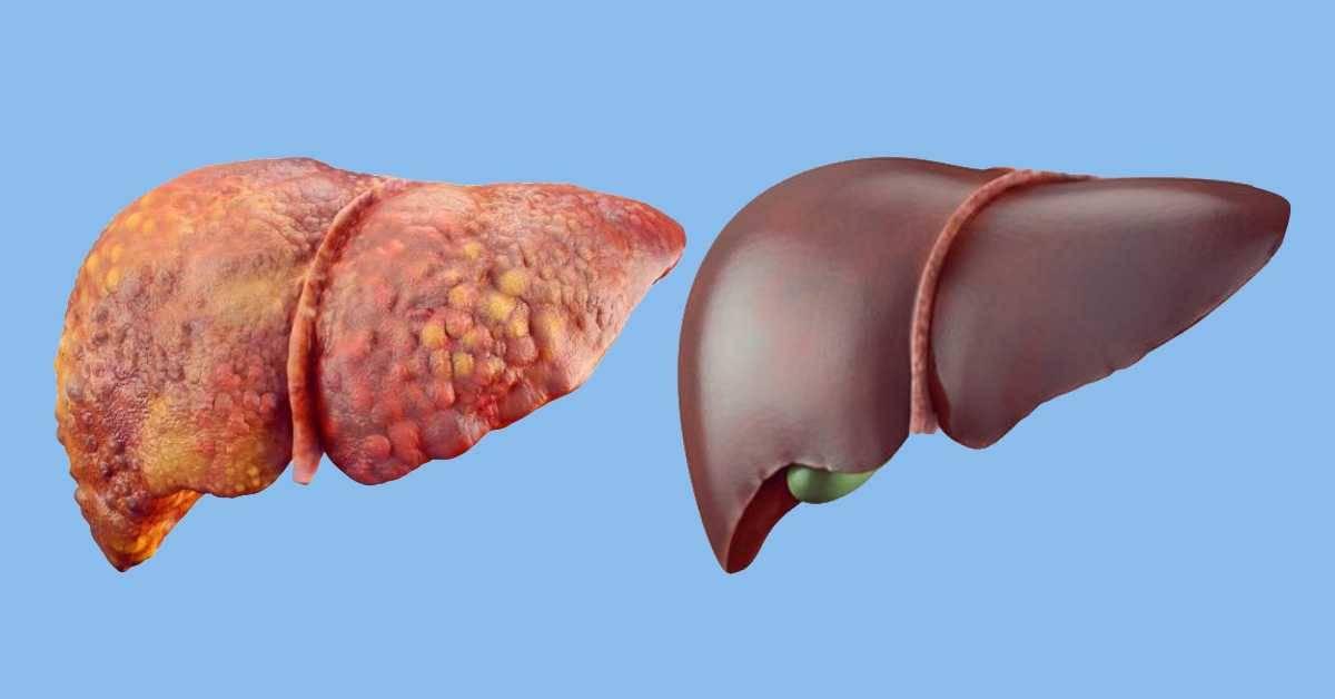 Влияние алкоголя на организм человека :: polismed.com