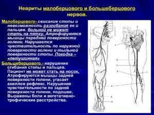 Нейропатия малоберцового нерва — причины, симптомы, лечение