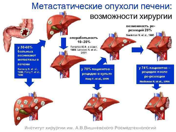 метастазы в печени диета