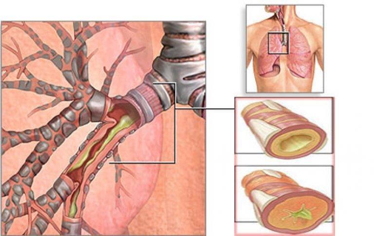 Трахеобронхит: симптомы и лечение