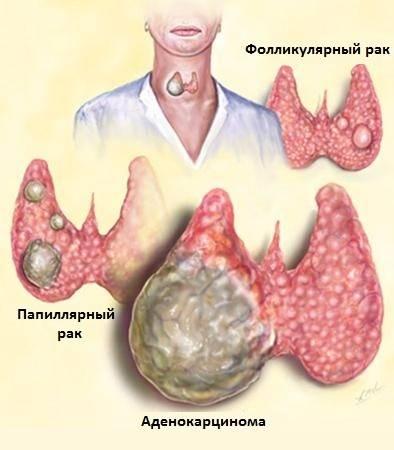 Что такое рак щитовидной железы, и какие симптомы присутствуют при раке щитовидки у мужчин?