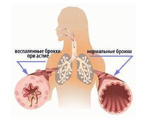 Аллергический дерматит у детей: лечение и симптомы, как лечить