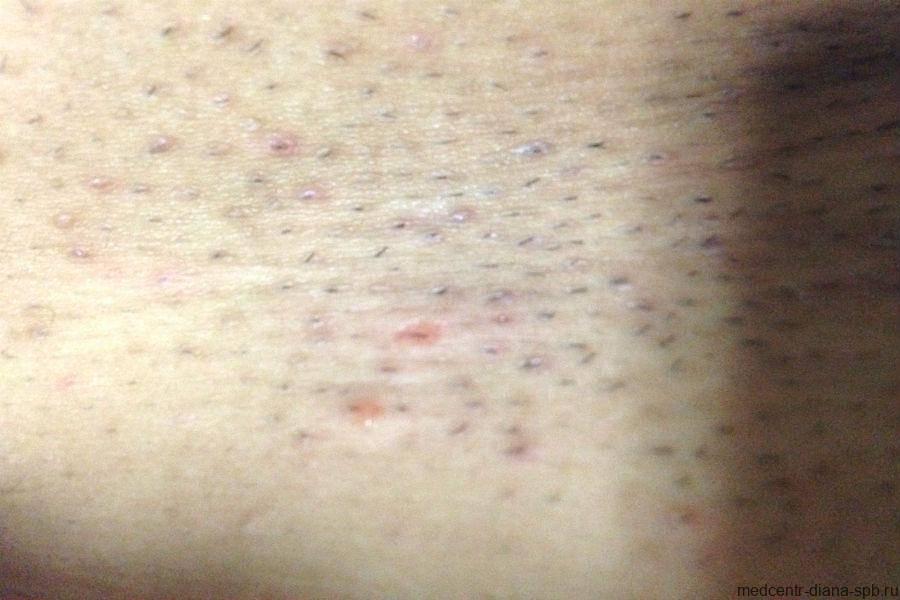 Паховый дерматит фото