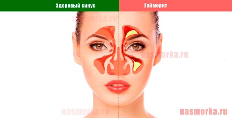 Сопли при гайморите, какого цвета могут быть выделения из носа