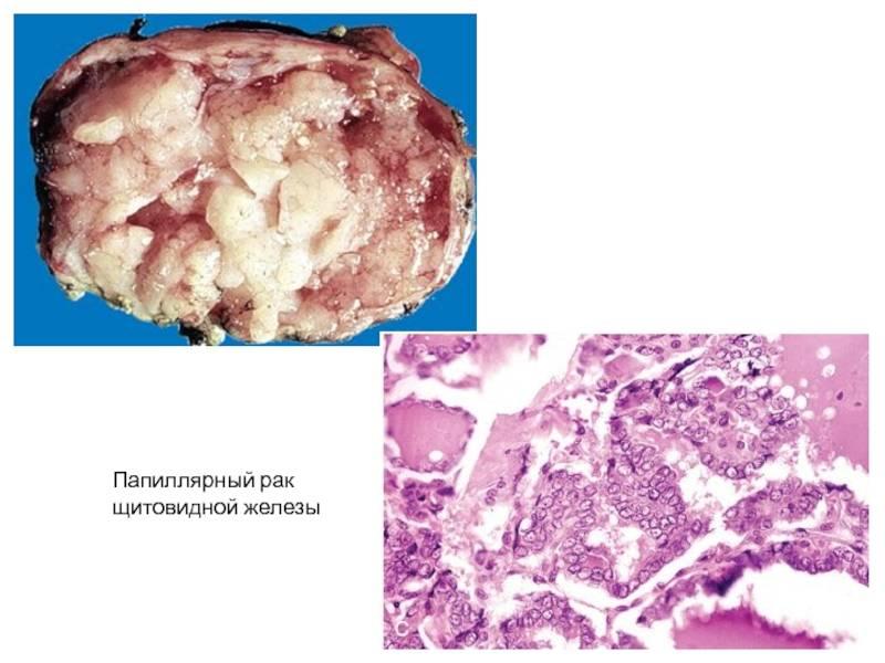 папиллярный рак щитовидной железы лечение