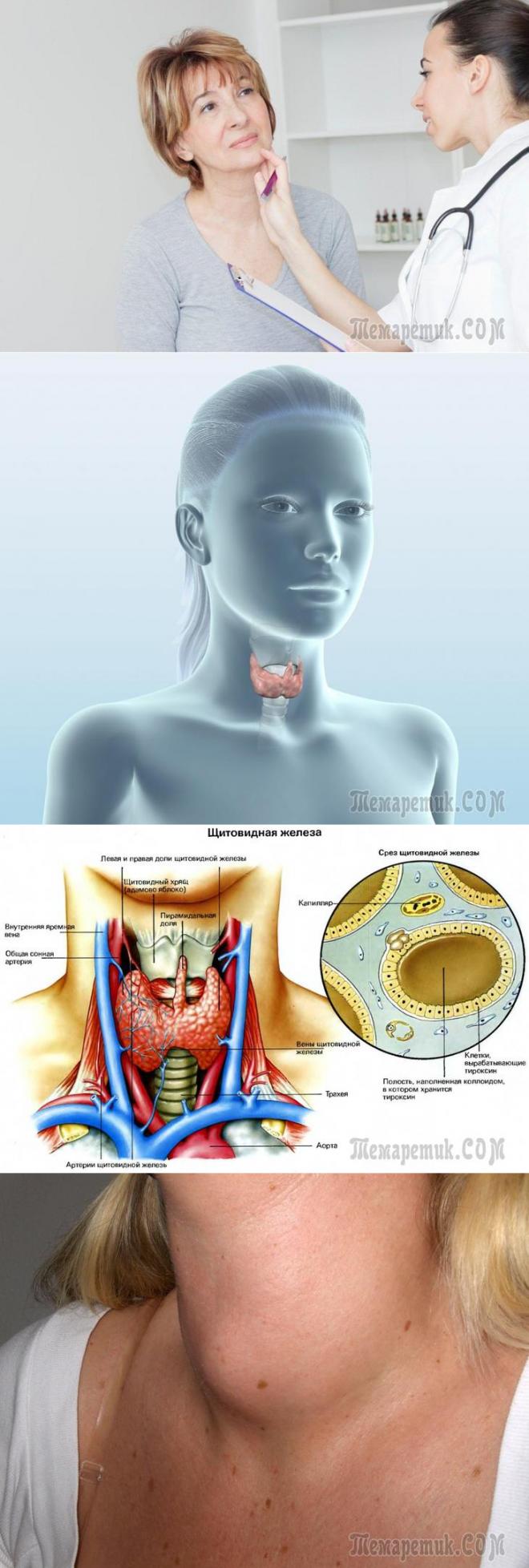 Психологические причины заболевания щитовидной железы у женщин
