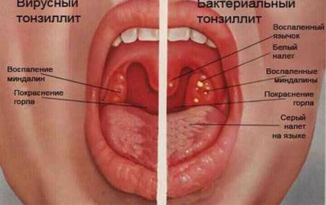 Ангина. причины, симптомы, диагностика и эффективное лечение болезни