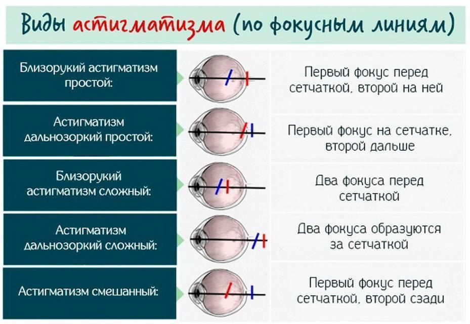 астигматизм и близорукость