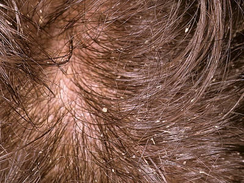 Симптомы и лечение себорейного дерматита кожи головы мазями, препаратами и шампунями
