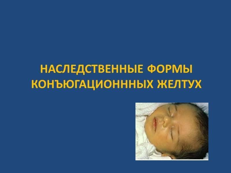конъюгационная желтуха новорожденных
