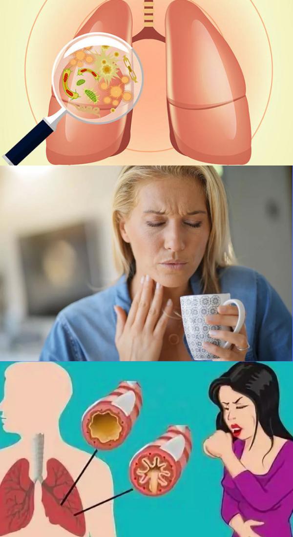 Скопление слизи в горле: причины и лечение, как избавиться в домашних условиях?