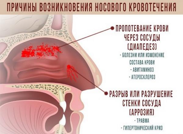 Идет кровь из носа: что делать