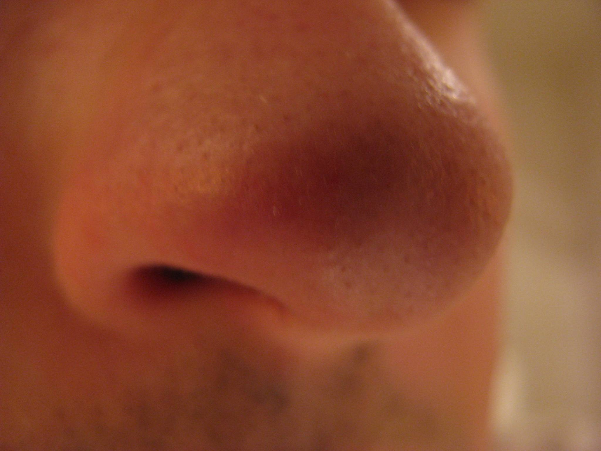 чирей в носу