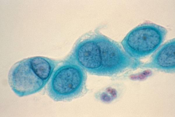 Первые признаки и лечение хламидиоза у женщин