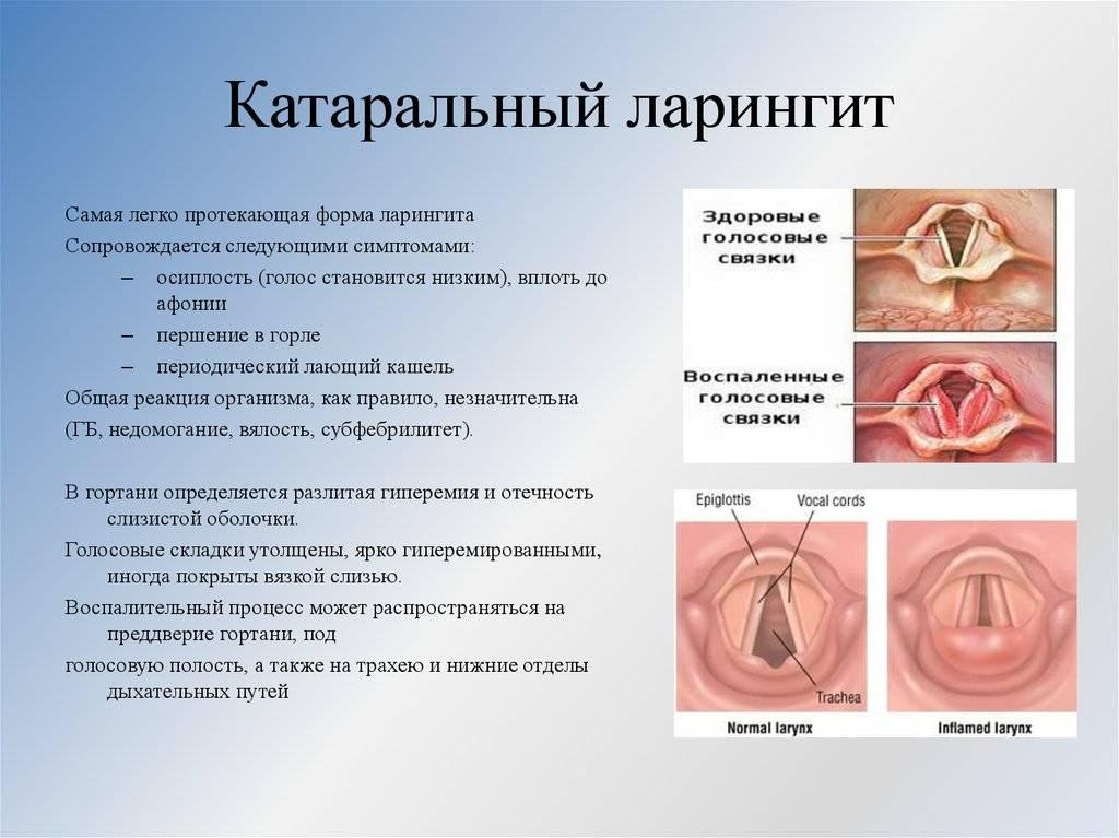 Воспаление голосовых связок: причины, симптомы. методы лечения воспаления голосовых связок