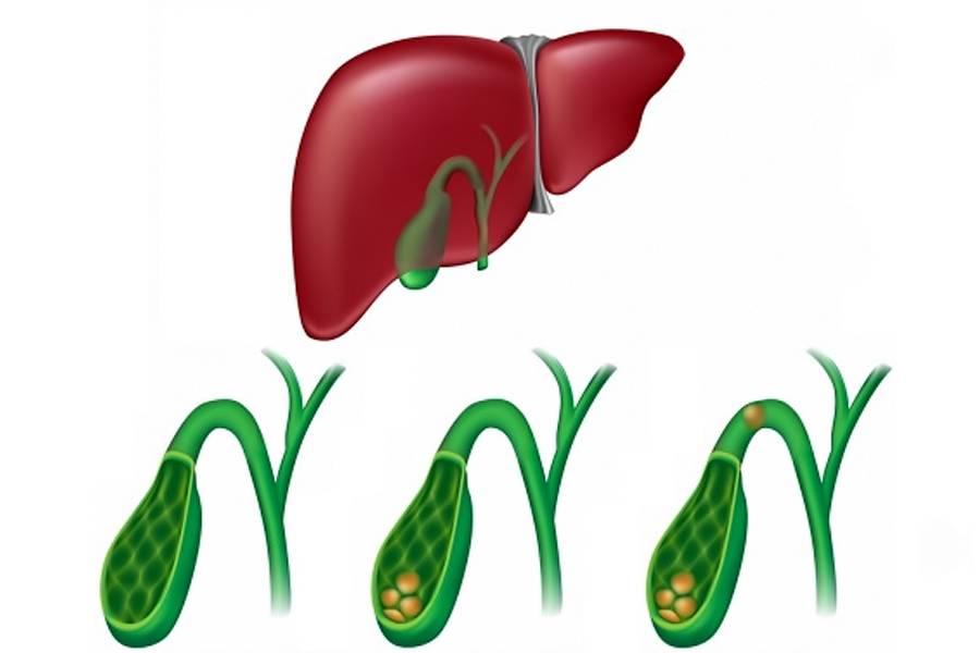 Какие симптомы болезни желчного пузыря. где находится желчный пузырь? злокачественные опухоли желчного.