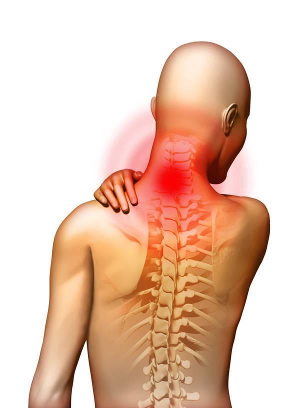 невралгия позвоночника симптомы лечение