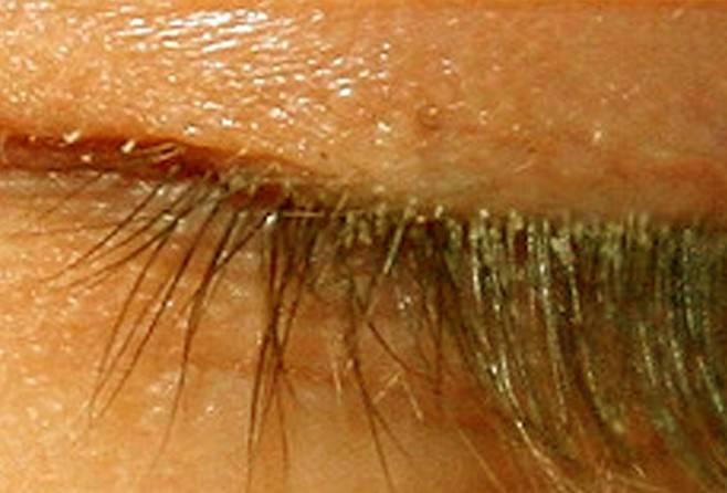 Демодекс: лечение кожи лица и век глаз