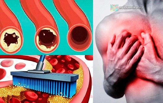 Высокий уровень гомоцистеина – именно поэтому у вас повышенный холестерин!