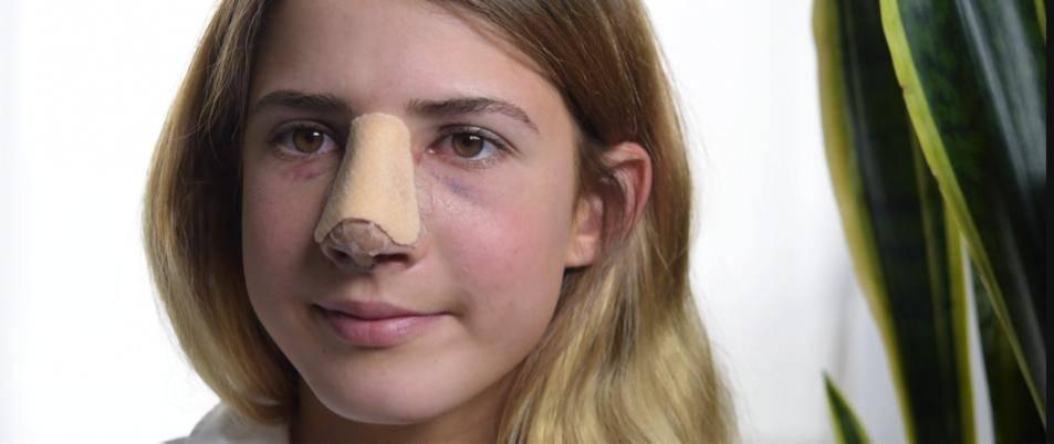 Ушиб носа: симптомы, лечение, последствия