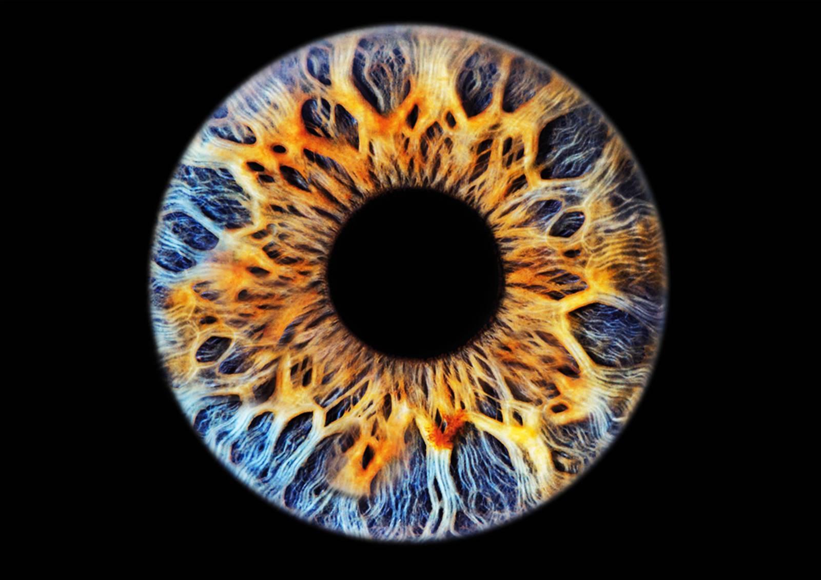 глазная радужница