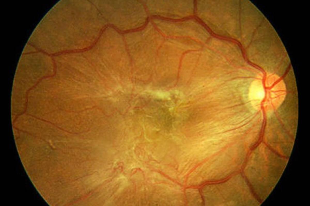 фиброз сетчатки глаза