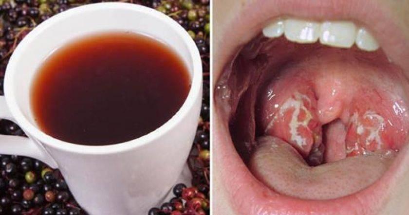 бактериальный фарингит симптомы