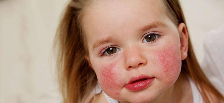 Народные средства для лечения аллергии в домашних условиях | метки: антигистаминный