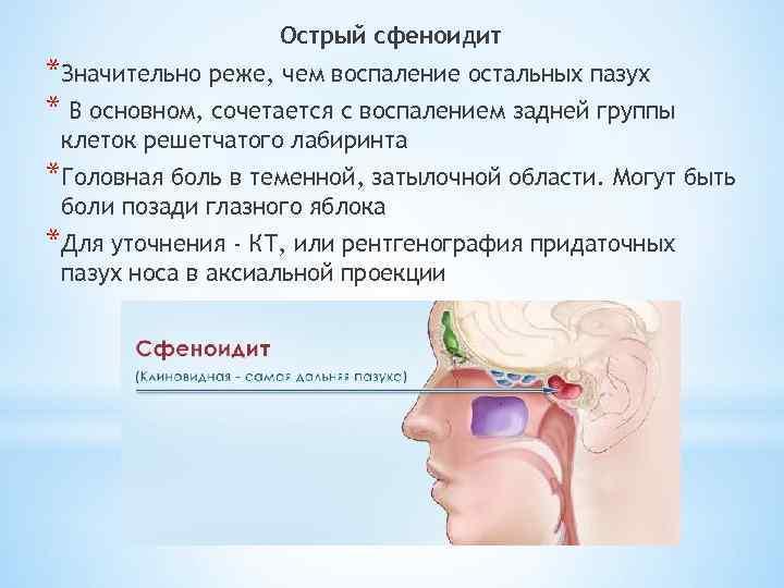 Лечение синусита в домашних условиях народными средствами, симптомы у взрослых