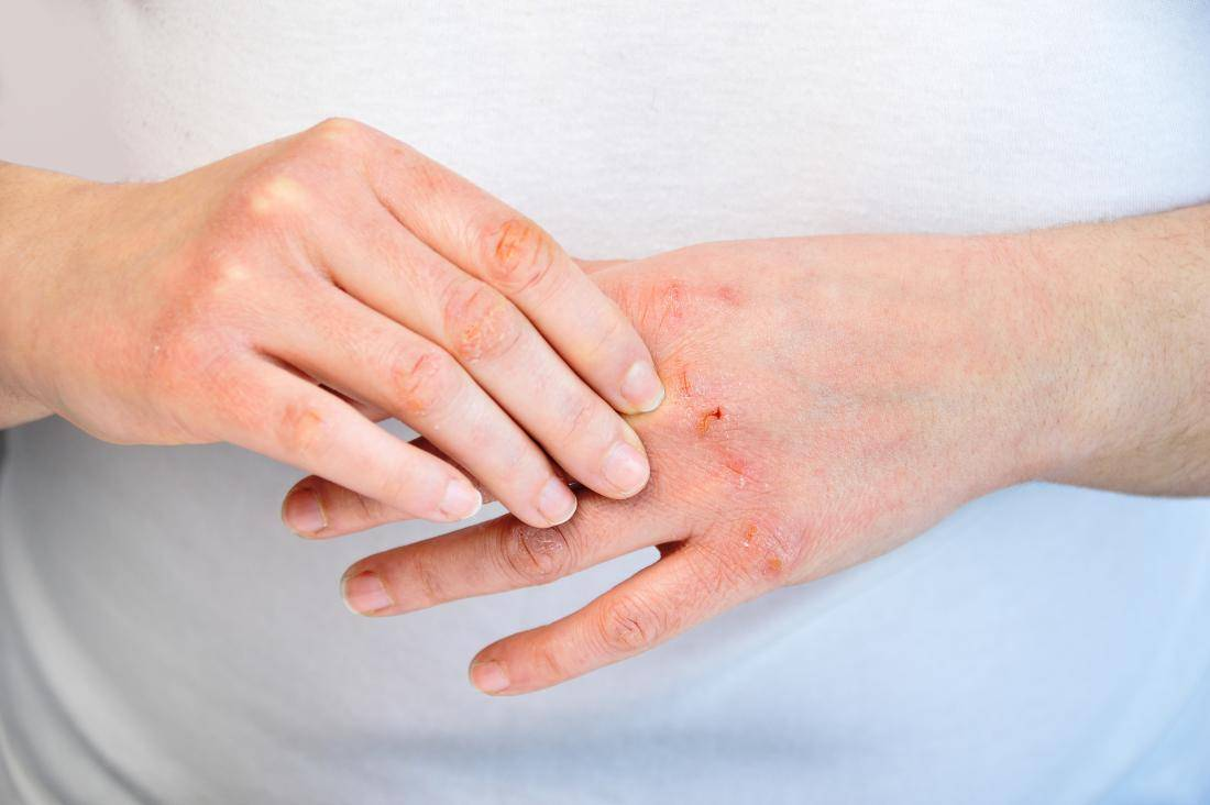 чем лечить псориаз на руках