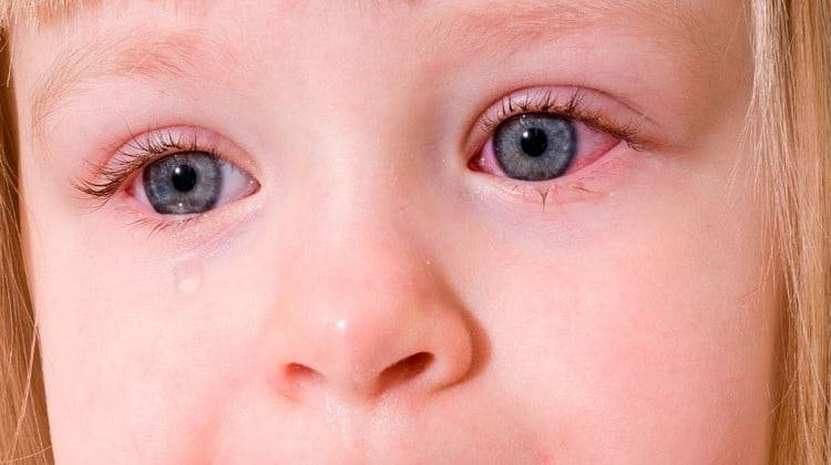 Вирусный конъюнктивит у детей: лечение, профилактика, прогулки
