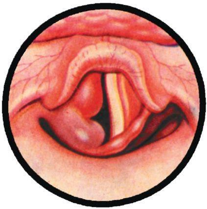 Опухшее горло: больно глотать? причины. как снять воспаление