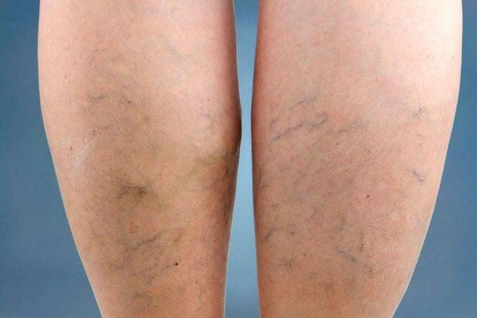 Лечение варикозного дерматита нижних конечностей
